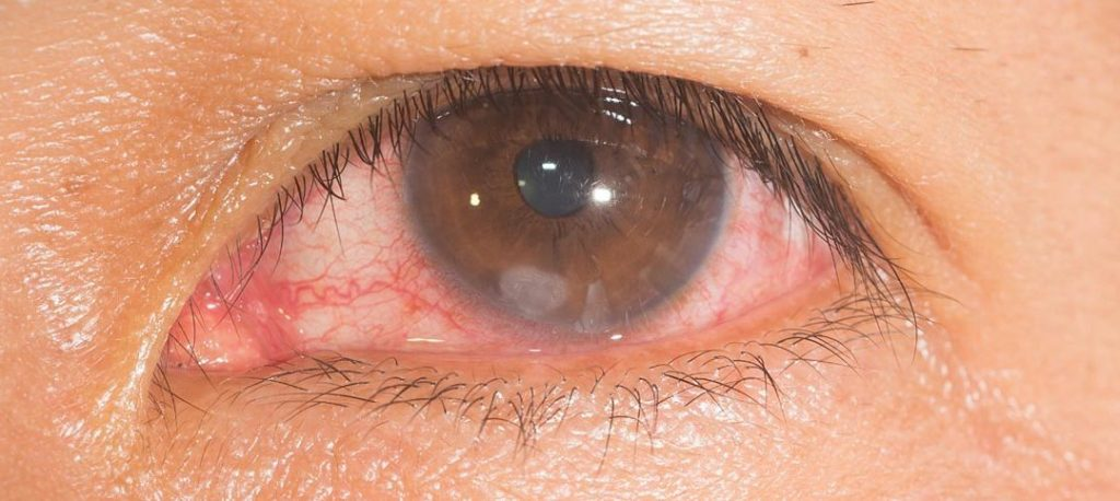 Eboli, due nuovi trapianti cornea all'ospedale