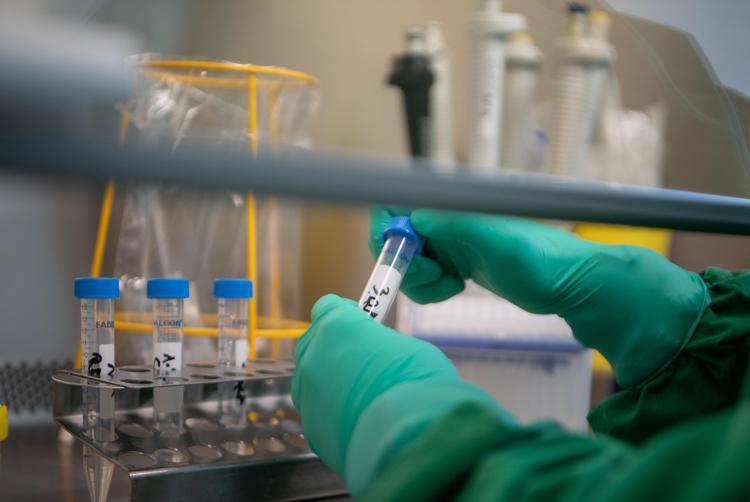 laboratorio afp - Covid, antiparassitario può bloccare danno ai polmoni