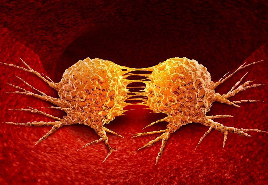 """Pellegrino (Iv): """"Recupero cure oncologiche, Ospedali tornino a funzionare regolarmente"""""""